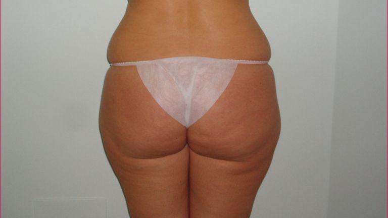 Body shaping 2 – Trattamento con Ultracav