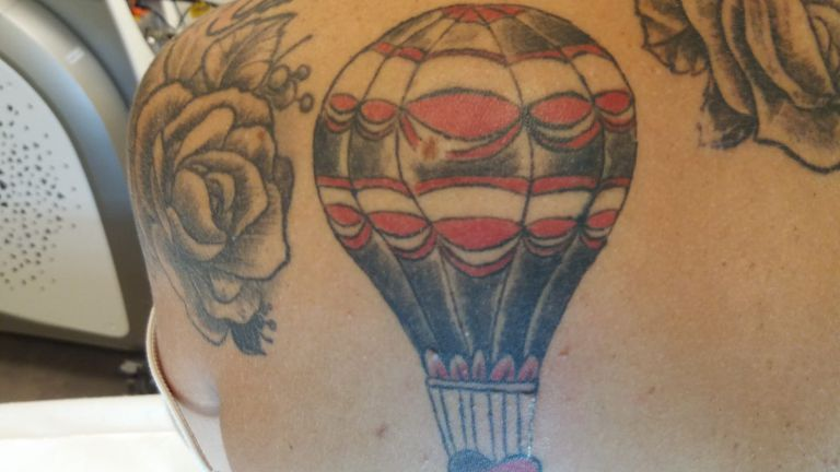 Rimozione tatuaggio  2 – Trattamento con Vega QS