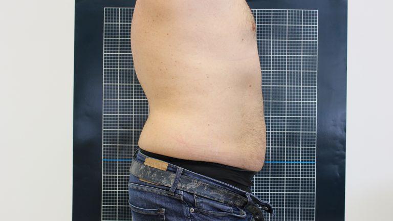 Body shaping 3 – Trattamento con Ultracav