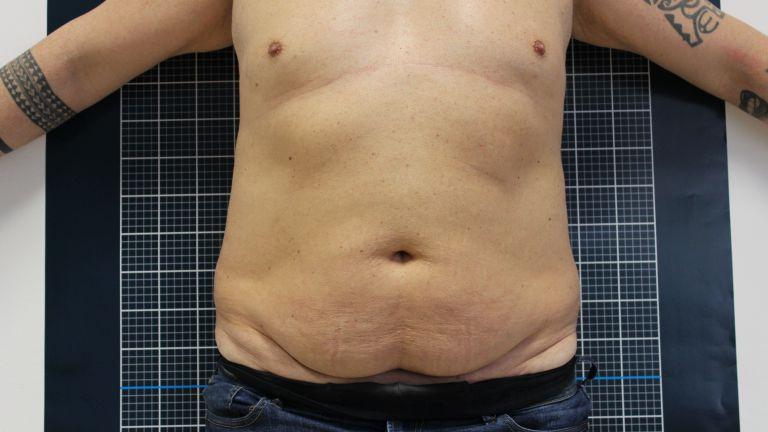 Body shaping 4 – Trattamento con Ultracav